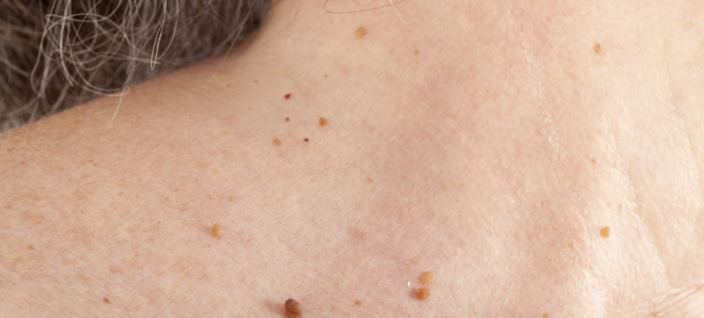 How to Remove Skin Tags Naturally