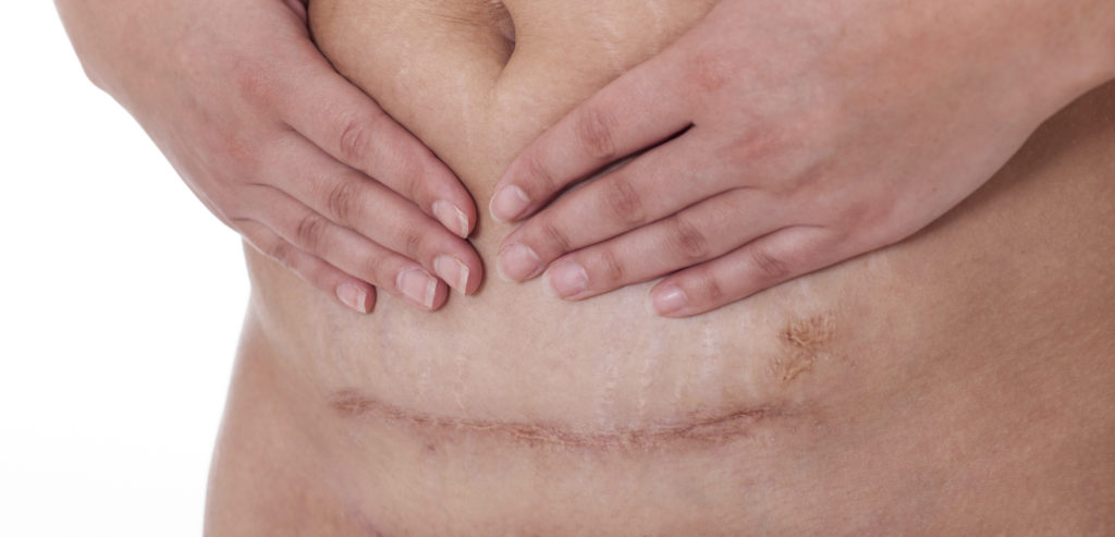 Scar after a Caesarean section, Bikini line